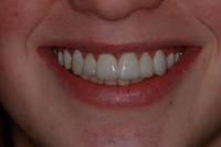 Prepless Veneers after