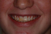 Prepless Veneers before