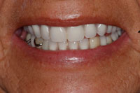 Life Like Cosmetic Denture after