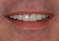 Stained Teeth After