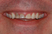Stained Teeth Before