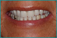 Sharon Teeth After